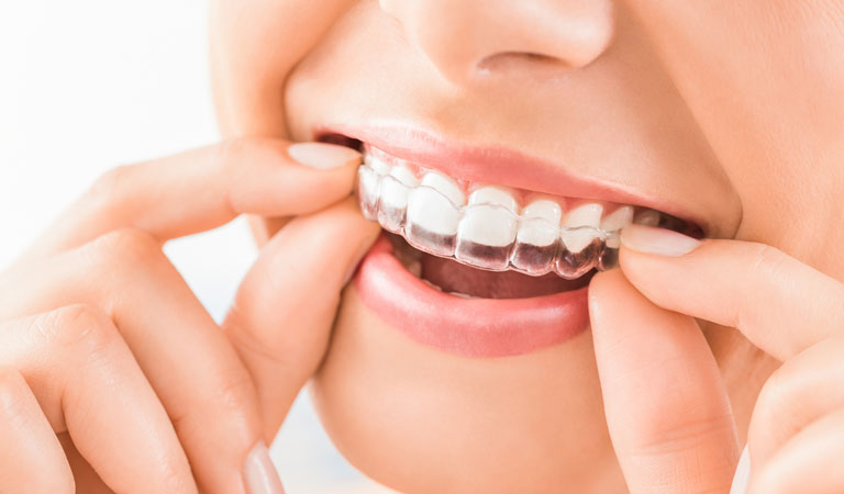 how-long-invisalign-take
