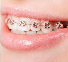 Orthosmile | West London Orthodontist | Invisalign Treatment